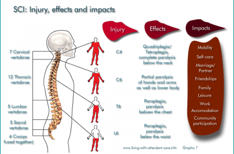 Spinal Cord Injury: Levels, symptoms and treatment