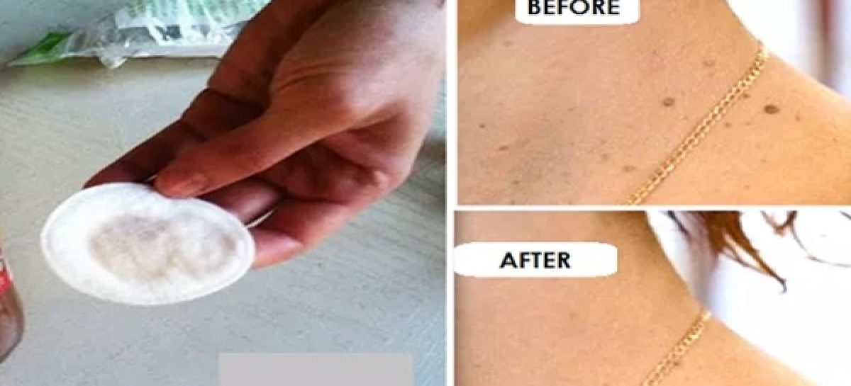 Remove warts, pimples and spots on your skin with this natural recipe