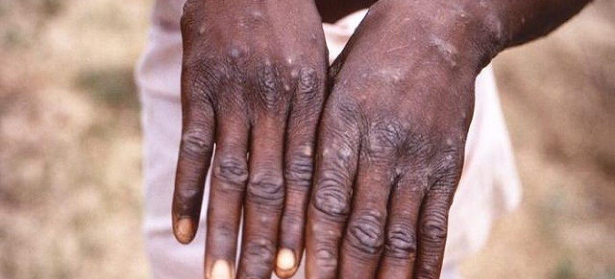 Monkeypox now in 11 states