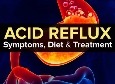 Acid reflux symptoms, diet & treatment