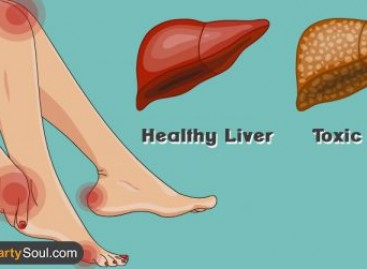 15 Warning Signs Your Liver is Overloaded With Toxins