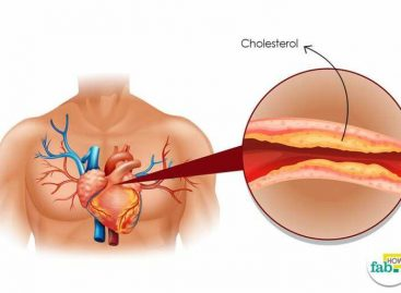 How to reduce cholesterol level without medication