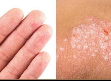 Best antiseptic ointment that treats eczema and psoriasis