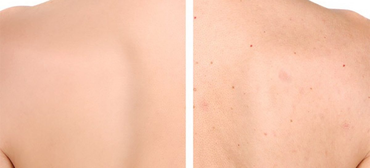 How to get rid of black acne fast naturally